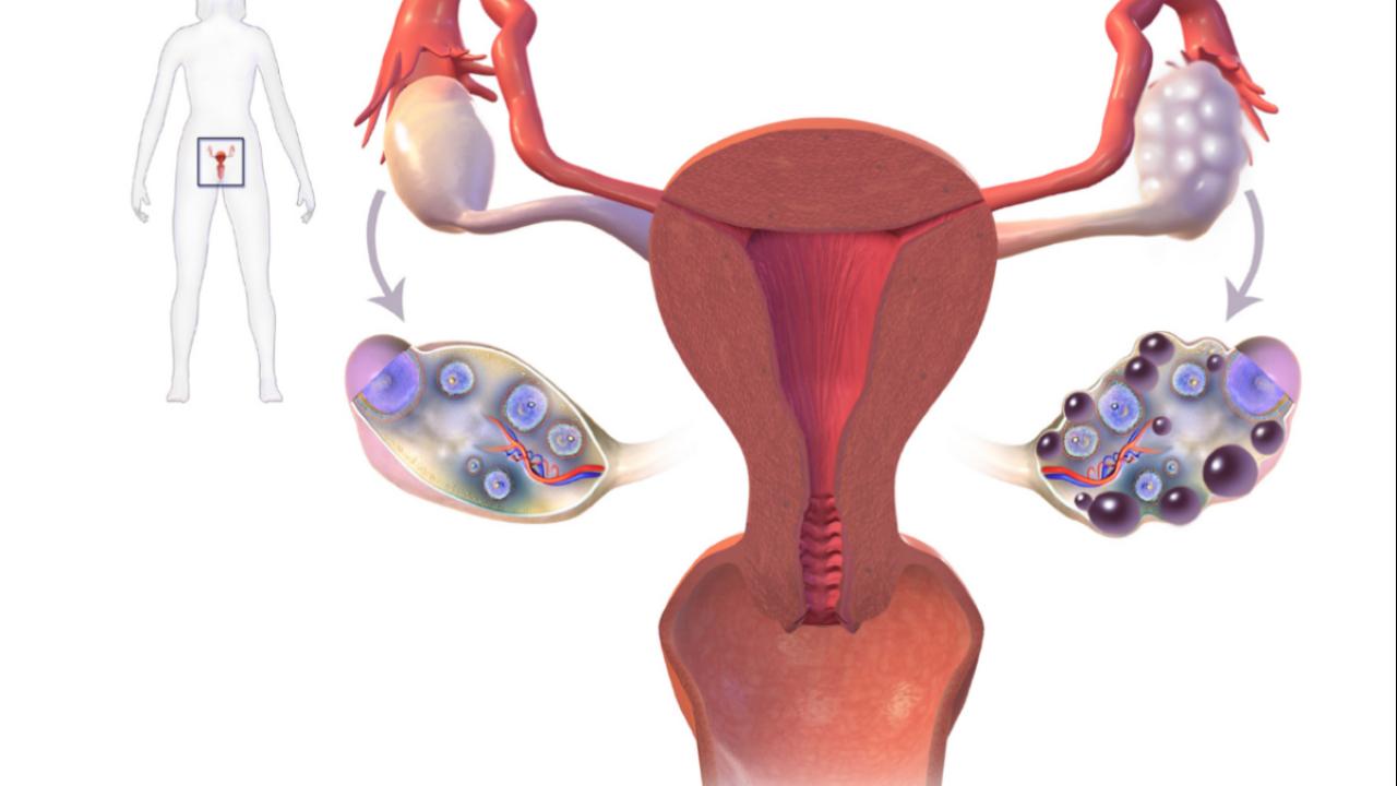 Especialista en síndrome de ovario poliquístico en Toluca